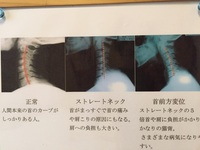 骨盤、背骨の歪みは精神衛生的にも良くない。